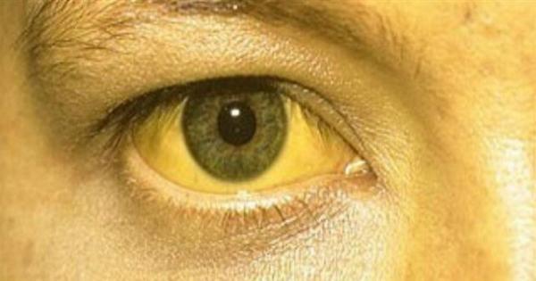 الأسباب الصحية لاصفرار العين ومتى تكون خطرا